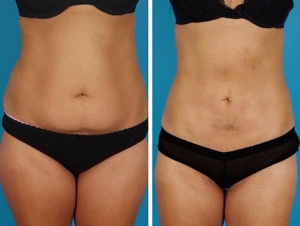 Фото до и после лазерной липосакции живота №2