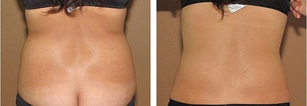 Фото до и после курса процедур мезодиссолюции №2