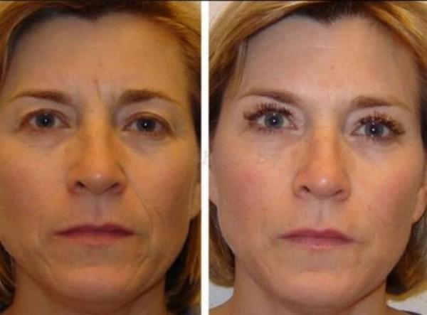 Фото до и после курса процедур кислородной мезотерапии №2