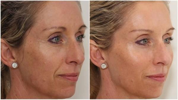 Фото до и после курса LPG массажа лица №2