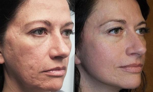 Фото до и после механической дермабразии