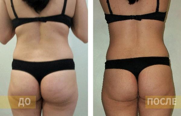 Фото до и после курса процедур с использованием аппарата Vela Shape №3