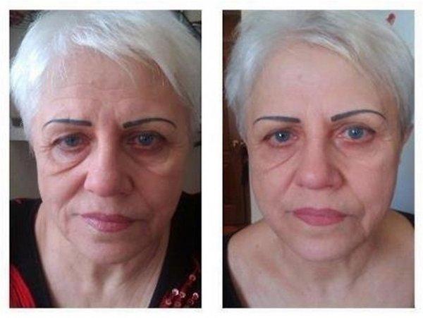 Фото до и после курса LPG массажа лица №3