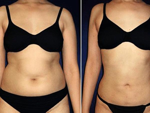 Фото до и после лазерной липосакции живота №3