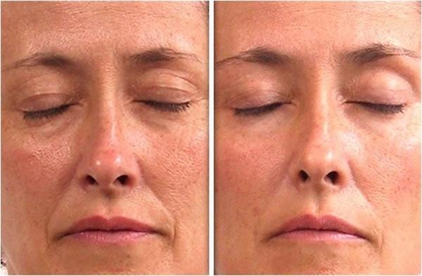 Фото до и после курса LPG массажа лица №4