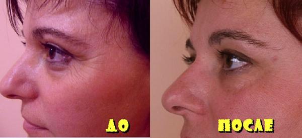 Фото до и после курса процедур с использованием коллагенария №1