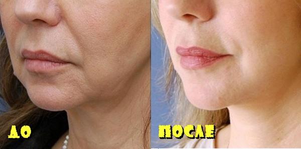 Фото до и после курса процедур с использованием коллагенария №2