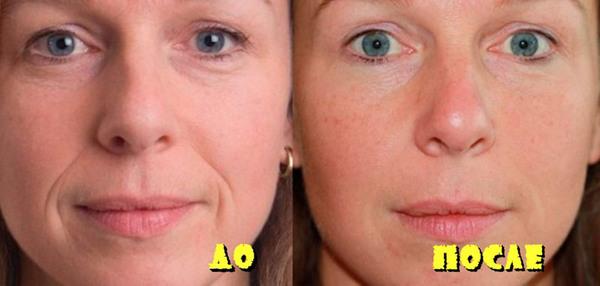 Фото до и после курса процедур с использованием коллагенария №3