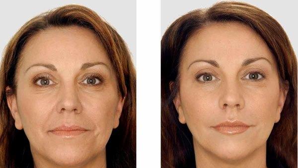 Фото до и после курса фракционной мезотерапии №2