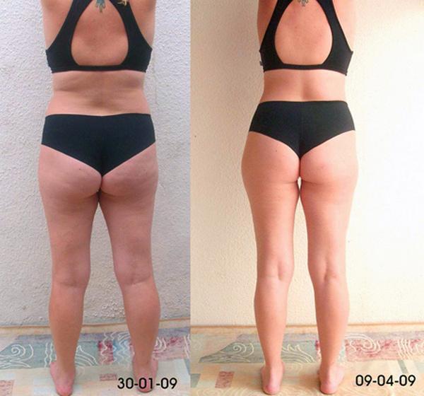 Фото до и после курса процедур медового антицеллюлитного массажа №3