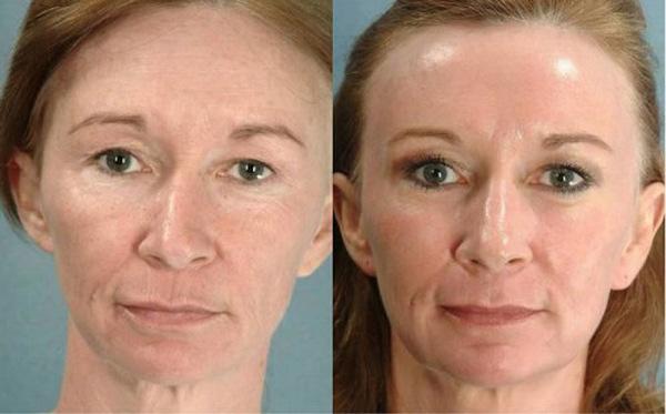 Фото до и после курса процедур фотоомоложения лица №3