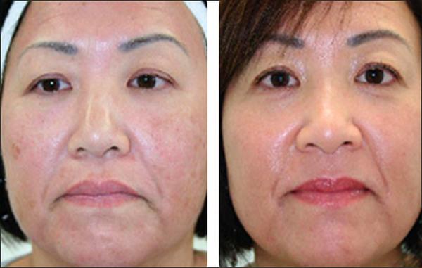 Фото до и после курса процедур фотоомоложения лица №1