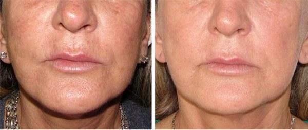 Фото до и после курса процедур фотоомоложения лица №2