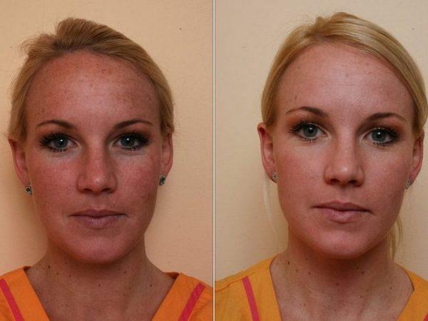 Фото до и после процедуры фракционного лазерного омоложения №3