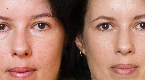 Фото до и после фракционного фотоомоложения