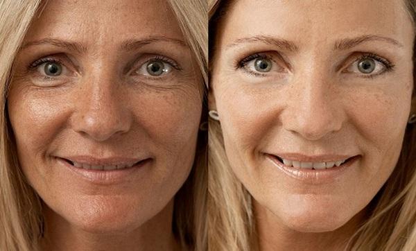 Фото до и после курса фракционной мезотерапии №1