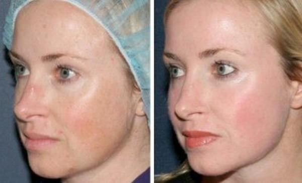 Фото до и после процедуры с лазером Fraxel № 1