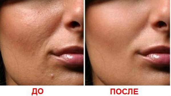 Фото до и после курса фракционной мезотерапии №3