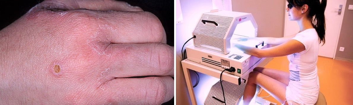 ПУВА-терапия эффективна при грибковых заболеваниях кожи