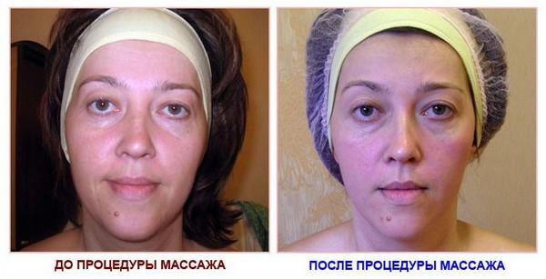 Фото до и после курса процедур китайского массажа лица № 1
