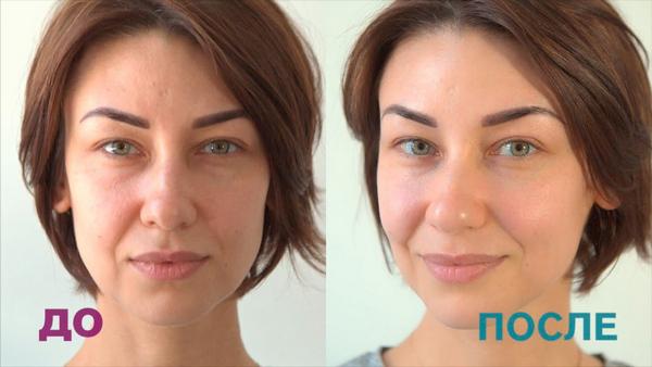 Фото до и после курса процедур китайского массажа лица № 2