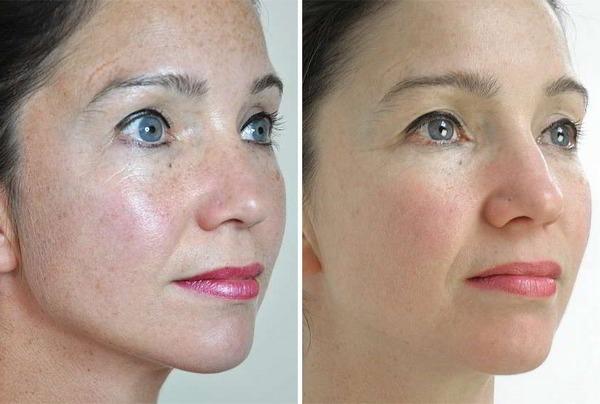 Фото до и после курса процедур криогенной мезотерапии