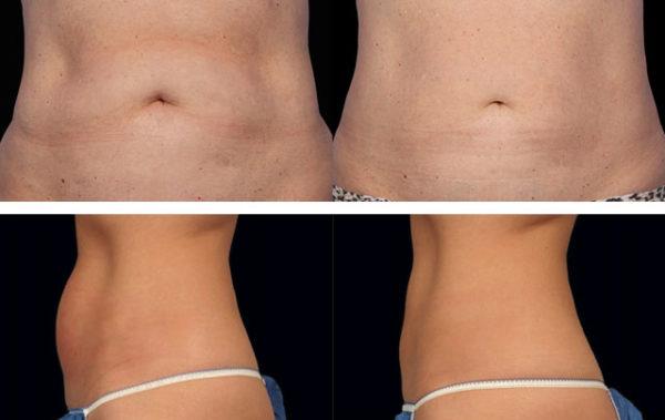 Фото до и после криолиполиза на аппарате Zeltiq № 3