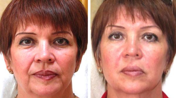 Фото до и после курса процедур криомассажа №2