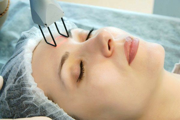 Карбоновый пилинг может применяться для подготовки кожи к фракционному фототермолизу