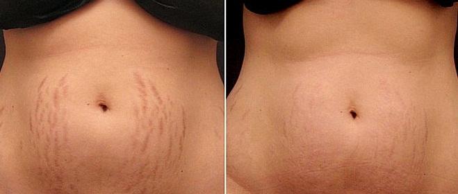 Фото до и после удаления растяжек лазером №2