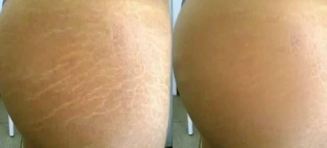 Фото до и после удаления растяжек лазером №1