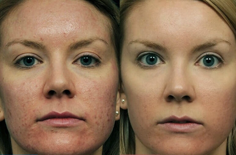 Фото до и после лазерного лечения №2