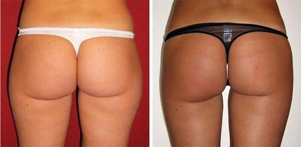 Фото до и после ультразвуковой липосакции № 2