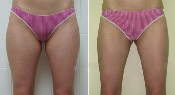 Фото до и после липоксации бедер и ягодиц №2