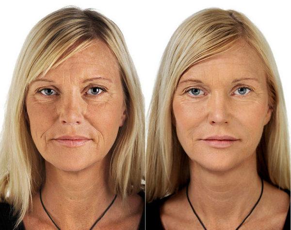 Фото до и после курса процедур магнитофореза