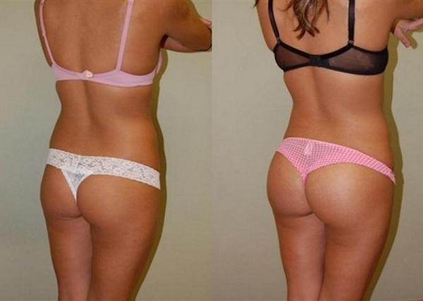 Фото до и после курса процедур медового антицеллюлитного массажа №2