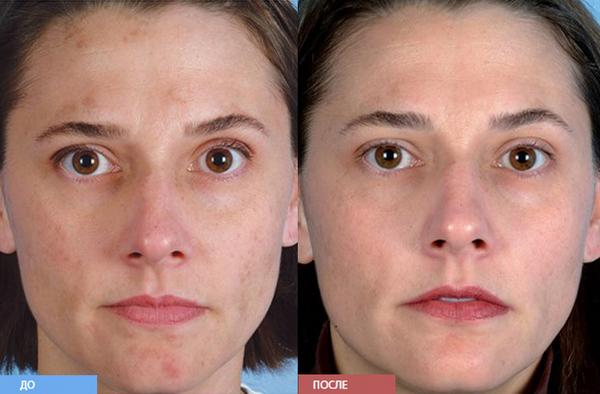 Фото до и после курса процедур алмазной дермабразии №3