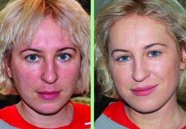 Фото до и после курса процедур микротоковой терапии №3