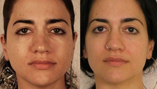 Фото до и после проведения курса процедур ионофореза №3