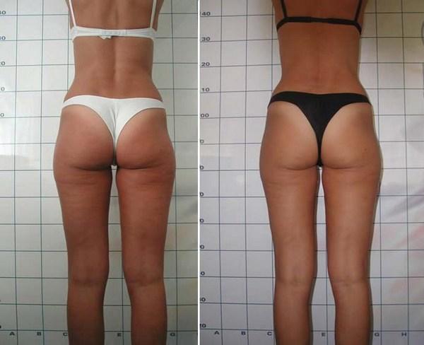 Фото до и после курса процедур миостимуляции №2