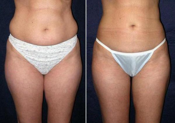 Фото до и после курса процедур миостимуляции №1