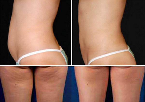 Фото до и после курса процедур миостимуляции №3