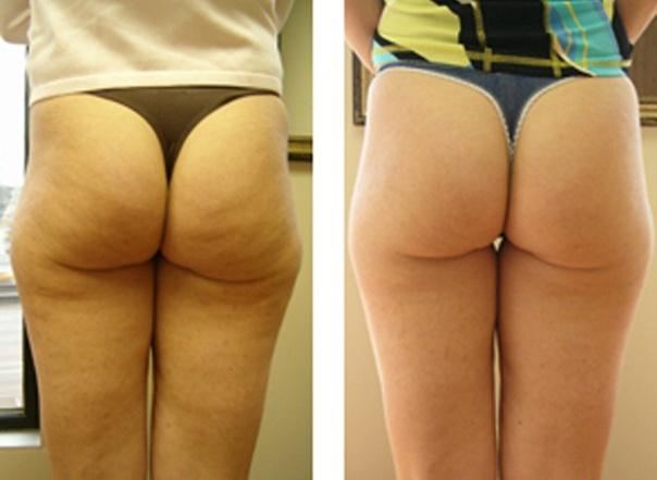 Фото до и после подтяжки ягодиц №2