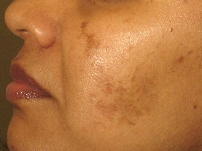 Гиперпигментация - один из побочных эффектов лазерного лечения