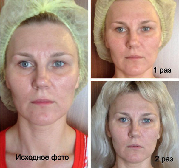 Фото до и после курса процедур китайского массажа лица № 3