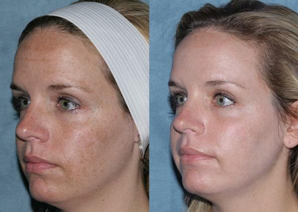 Фото до и после процедуры с лазером Fraxel № 3