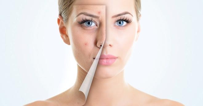 Лазерное лечение позволит быстро избавиться от косметических дефектов