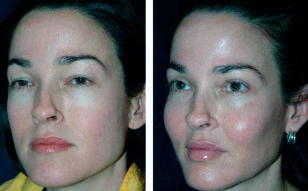 Фото до и после коррекции скул с помощью имплантов
