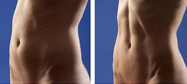 Фото до и после процедуры Vaser-липосакции № 2