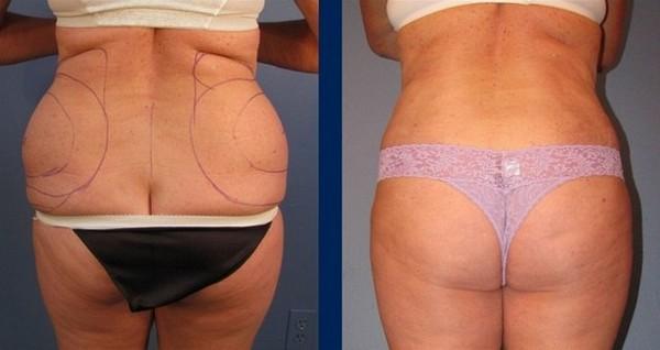 Фото до и после процедуры Vaser-липосакции № 1